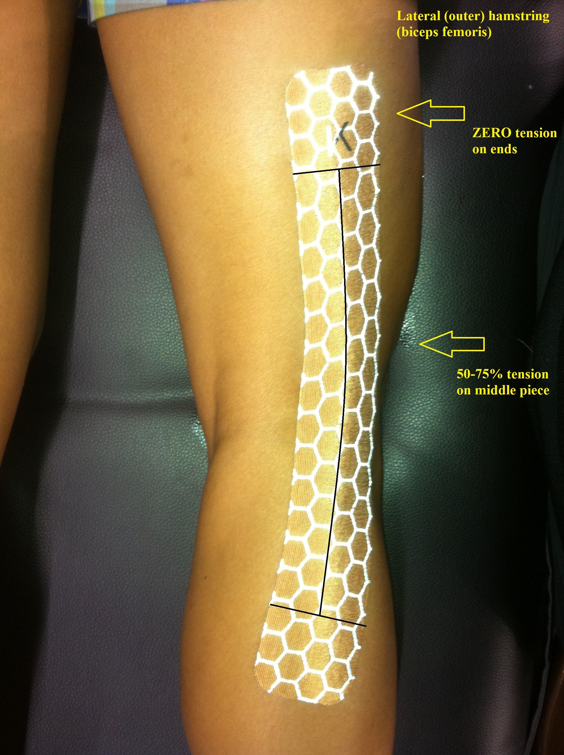 For medial meniscus move more toward the medial side of