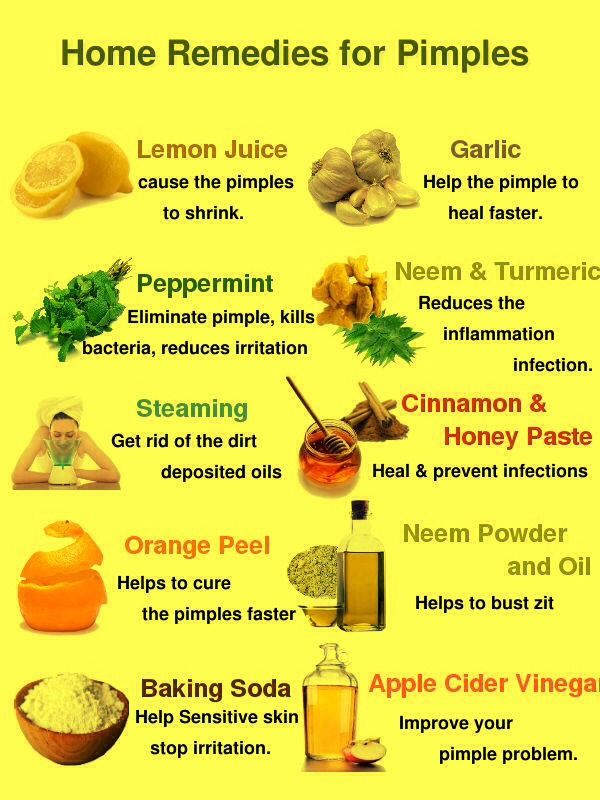 best remedy for pimples