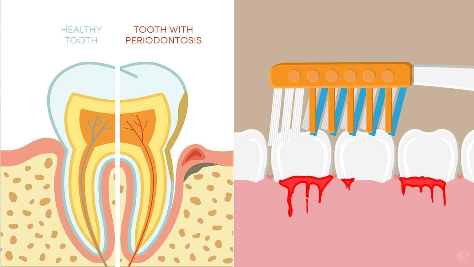 Dentist Explains 10 Ways to Treat Bleeding Gums Bleeding