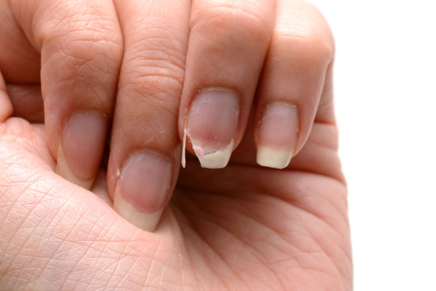 How to fix a broken nail in 5 minutes Brittle nails, Fix