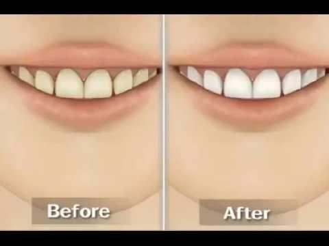 Teeth Whitening (Home Bleaching Kit)