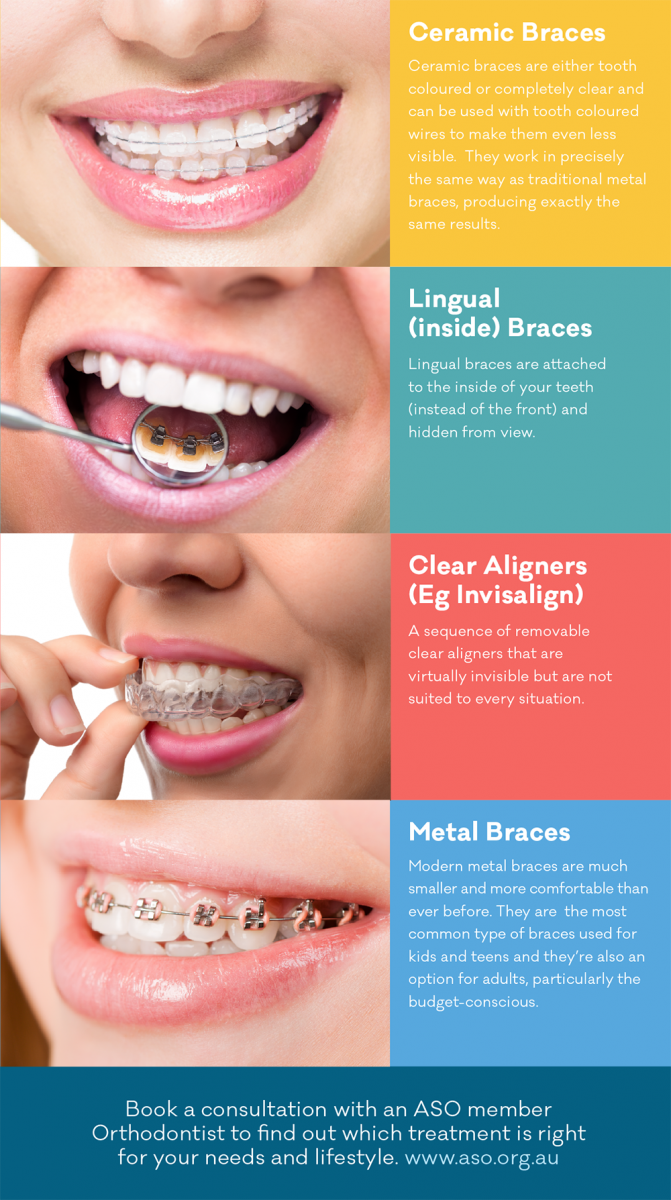 Types of braces info straighten teeth without braces reception types of braces info straighten teeth without braces solutioingenieria