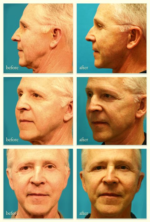 Complete lift facial cosmetic