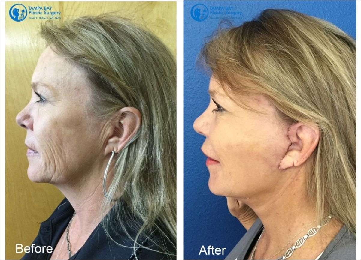 How Much Does A Facelift Cost Face lift surgery