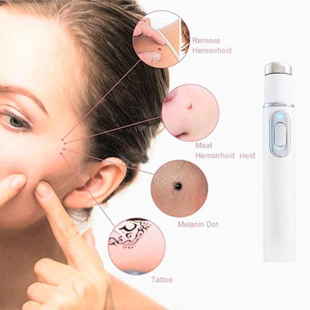 Smoothflash Laser Therapy Blue Light Skin Spots Removal Pen Lively Focus Skin Spot Remover Light Skin Spots Spot Removal