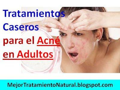 Mejor remedio para el acne