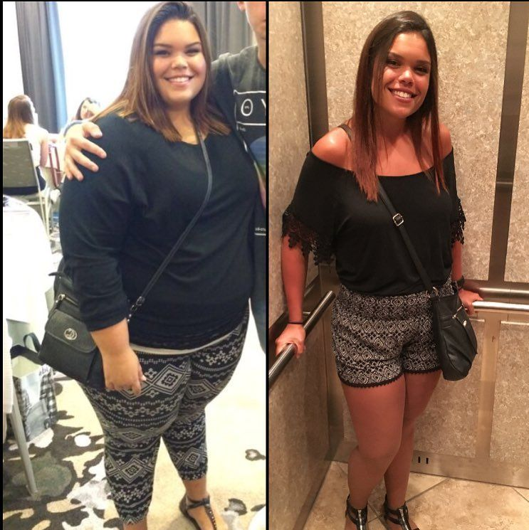 Pin on Weightloss pics : Before and After