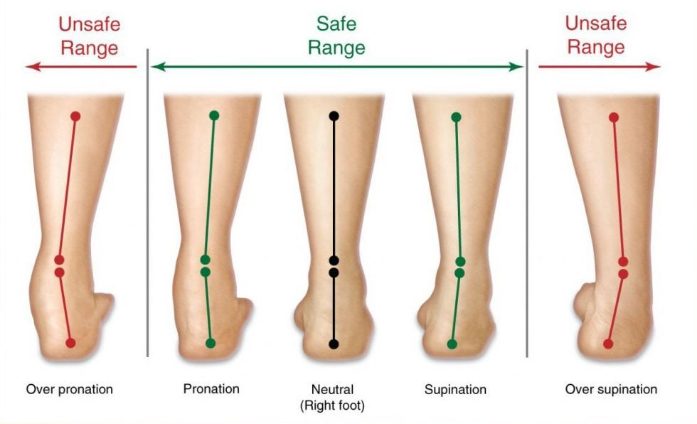 How Overpronation Happens & What You Can Do About It