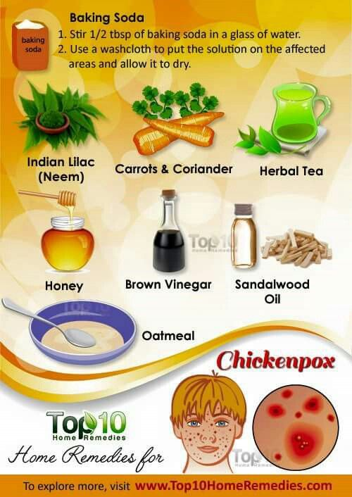 home remedies for chicken pox natural remedies home remediestop 10 home remedies home remedies for chicken pox