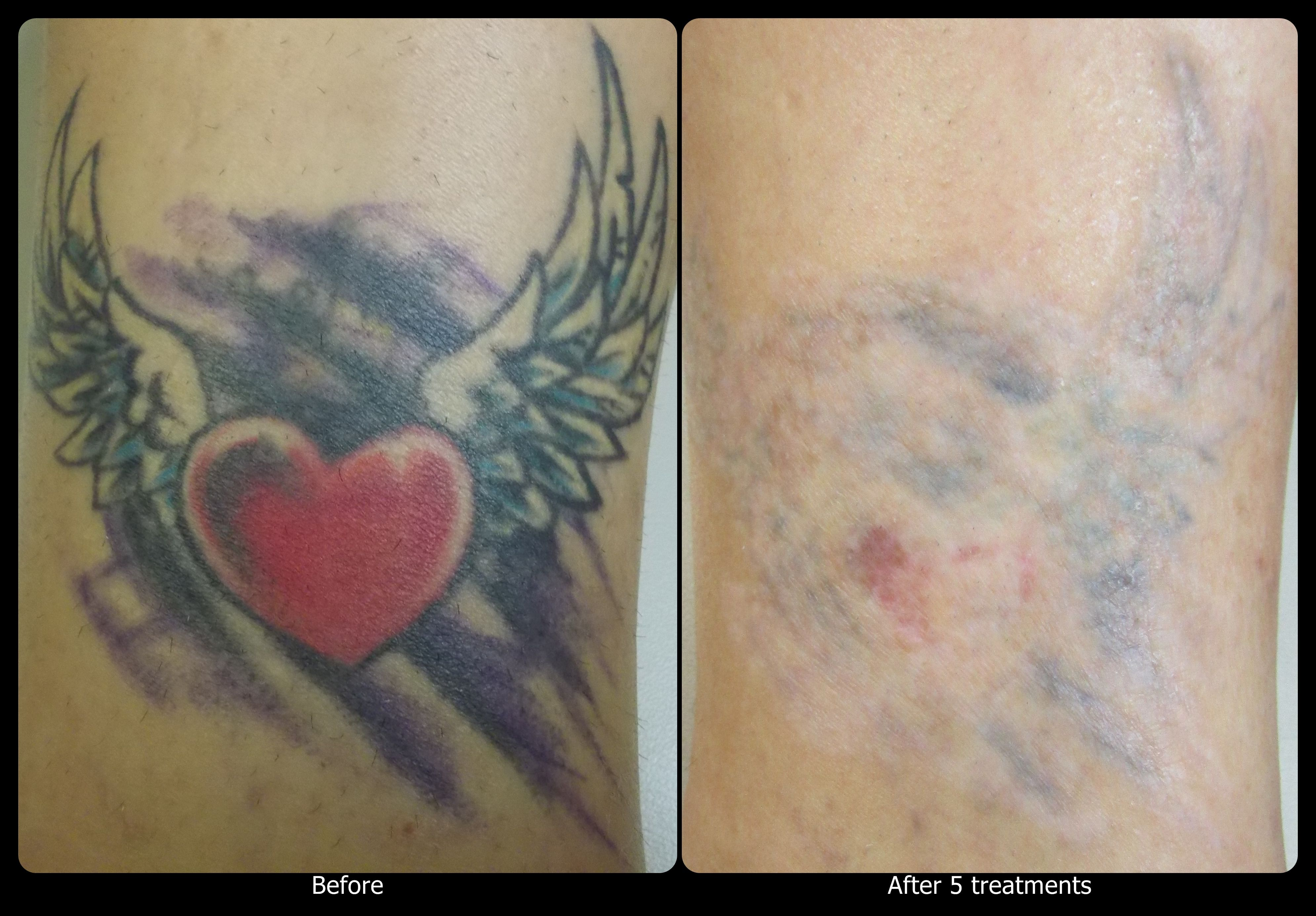 After 5 Treatments Over The Course Of About A Year This Tattoo Is Almost Gone This Client Had Some Trouble Wit Laser Tattoo Removal Maple Leaf Tattoo Red Ink