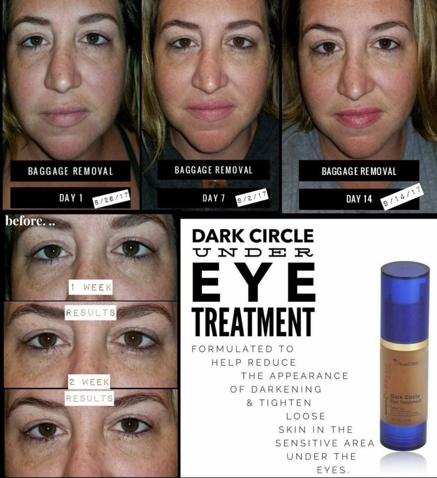 Dark Circle Under Eye Treatment Senegence Dark Circles Treatment Dark Circles Under Eyes Bumps Under Eyes