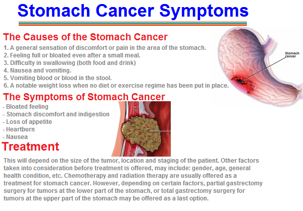 Symtoms of stomac cancer