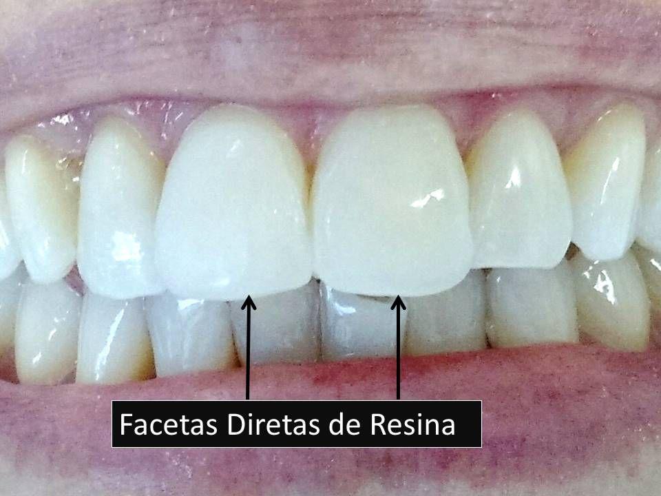 Como Clarear Os Dentes Facetas De Resina Dentistry Dentistry E Teeth
