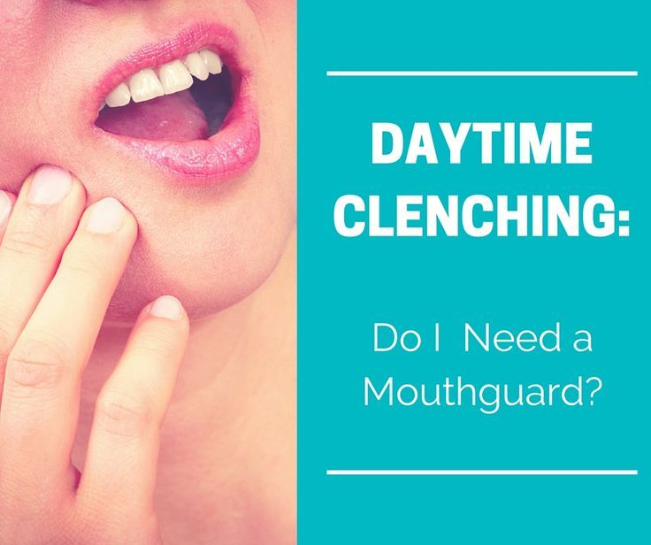 Daytime clenching do i need a mouthguard with images