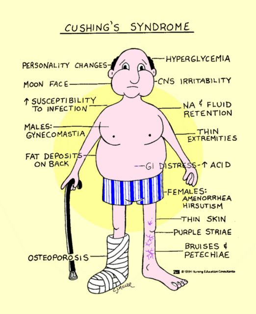 addison's disease vs cushing's disease | ms | pinterest | school, Human Body