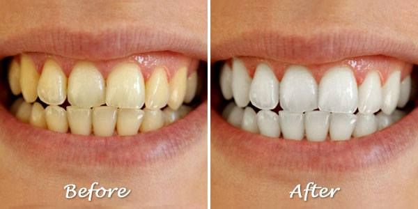 How To Get White Teeth Fast Naturally Without Using Any Chemical