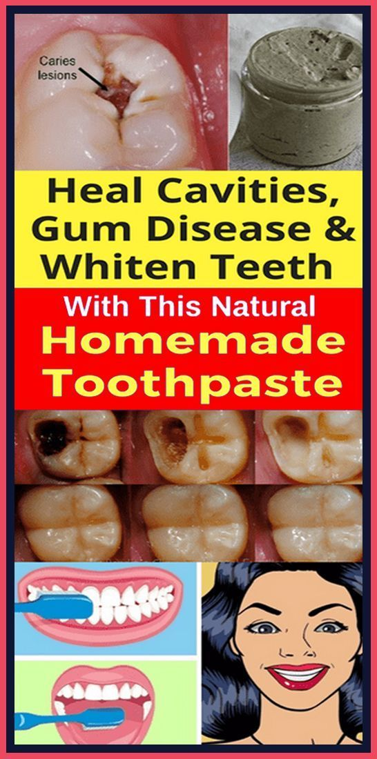 Zahnärzte werden Ihnen sagen, dass Genetik und richtige Zahnpflege und Fluorid t   – health products