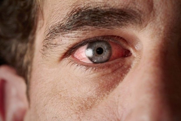 New study suggests vitamin D deficiency is related to dry eye