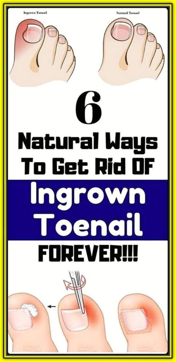 Good Natural Remedies 6 Natural Way To Get Rid Of
