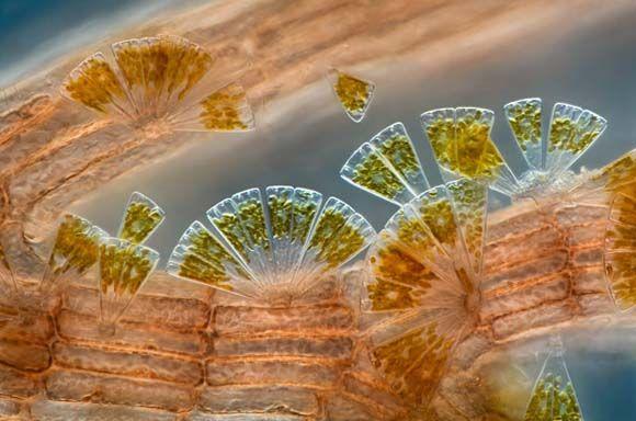 Charles Krebs Marine diatoms attached to Polysiphonia (red algae) (100X)