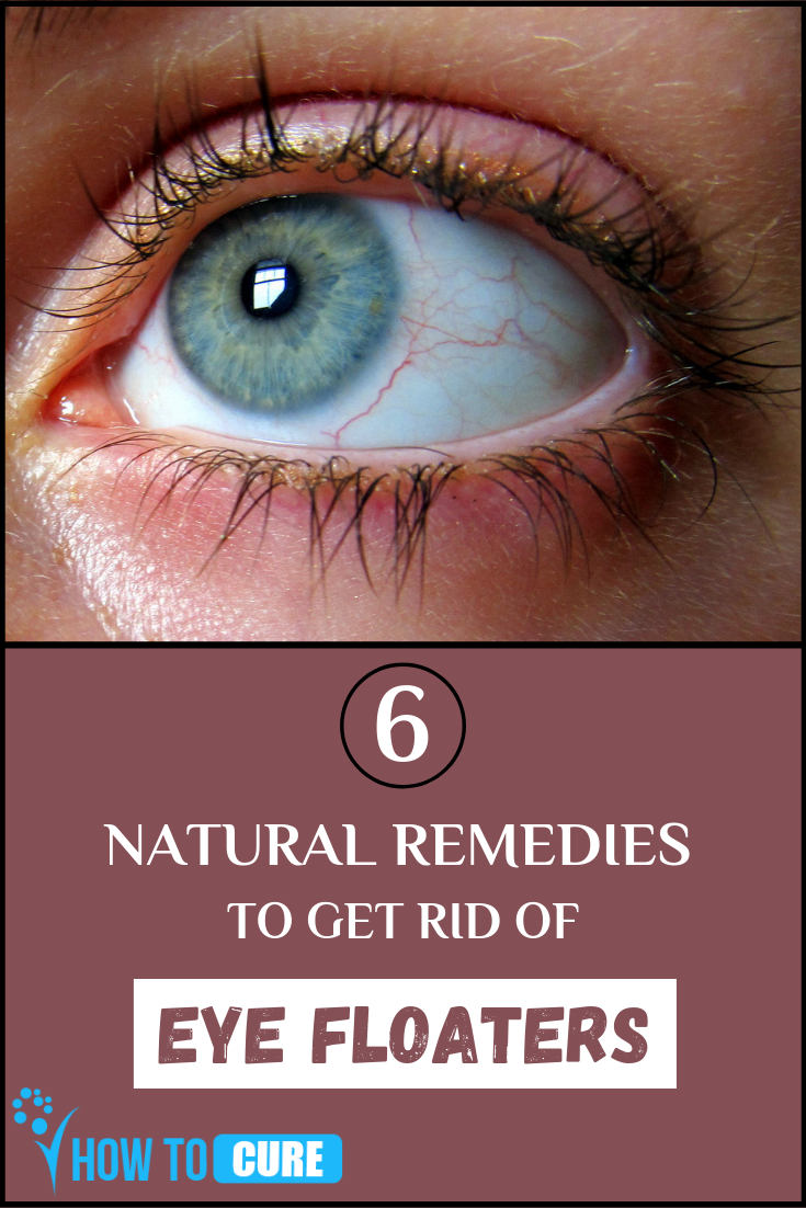How to Get Rid of Eye Floaters with Terrific Natural