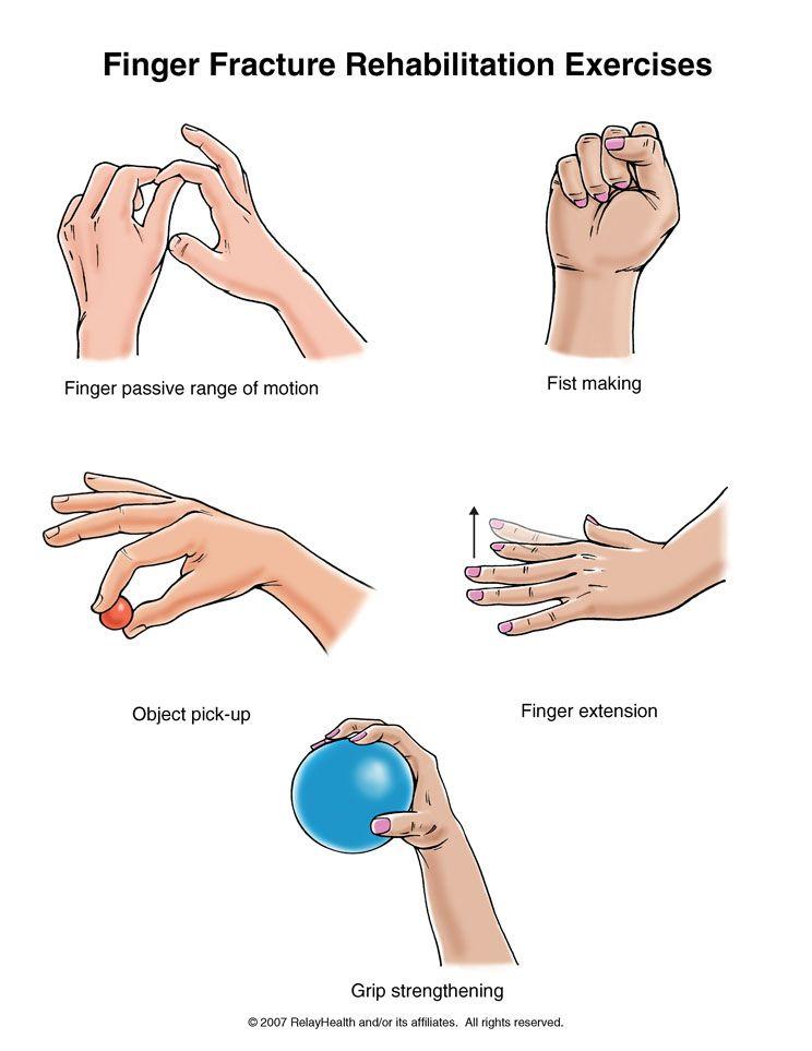 finger fracture exercises medical