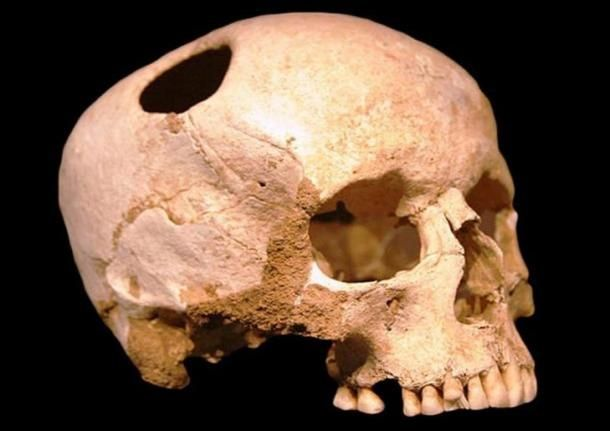 7 000 Year Old Head Surgery One Of The Oldest Trepanned Skulls Discovered In Sudan Ancient History Archaeology Ancient History Ancient Origins