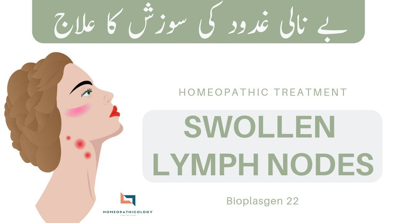 Swollen Lymph Nodes in Neck Homeopathic Treatment   SCROFULA