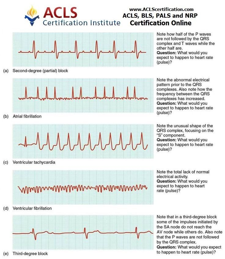 Ekg Whos Naturally Good At Em No One Its Learned And Needs