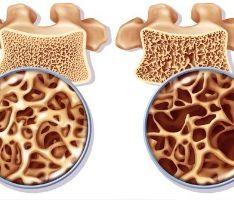 Osteoporose, ook wel botontkalking genoemd, is het brozer worden van je botten en wordt onder andere veroorzaakt door een calciumtekort in het beenmerg.