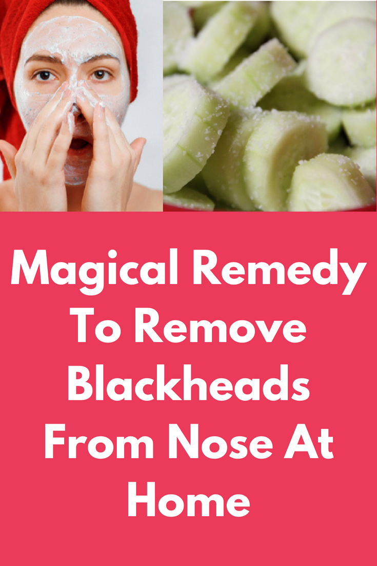 Get Rid of Blackheads in  minutes instantly  remove blackheads