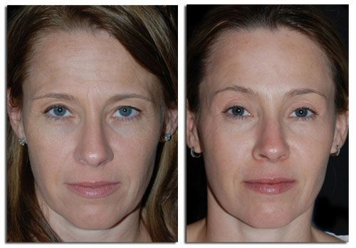 Face Restoration Aerobics For A Shapely, Youthful Face