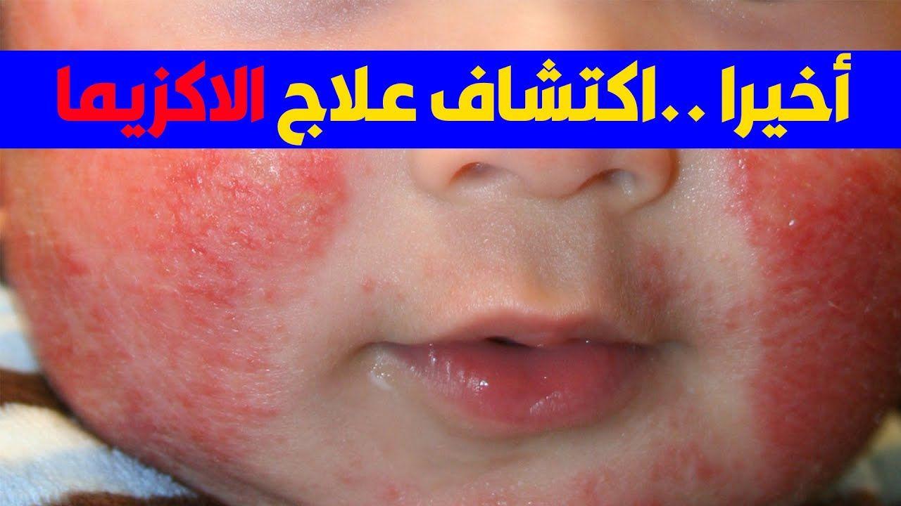 اكتشاف احدث علاج للاكزيما عند الاطفال في نهاية الفيديو Parenting Hacks Parenting Youtube