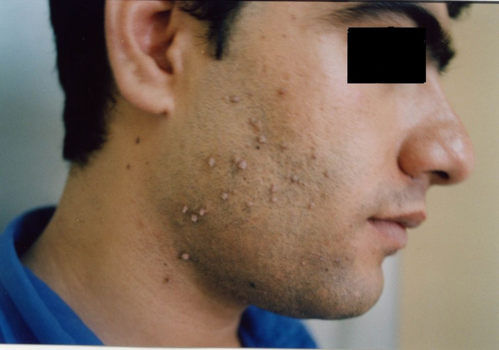 Skin warts on face causes Hpv skin treatment