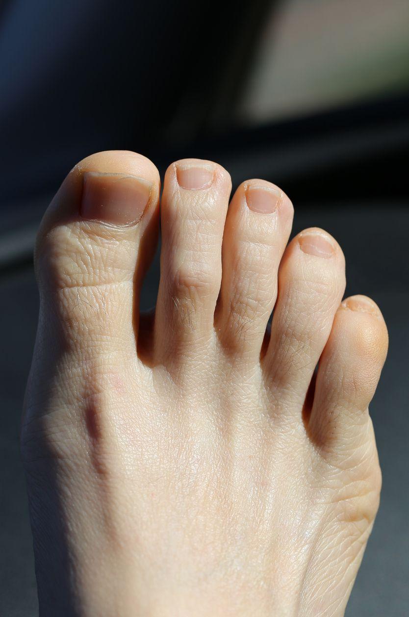 Gelbe Fußnägel – Ursachen und Behandlung