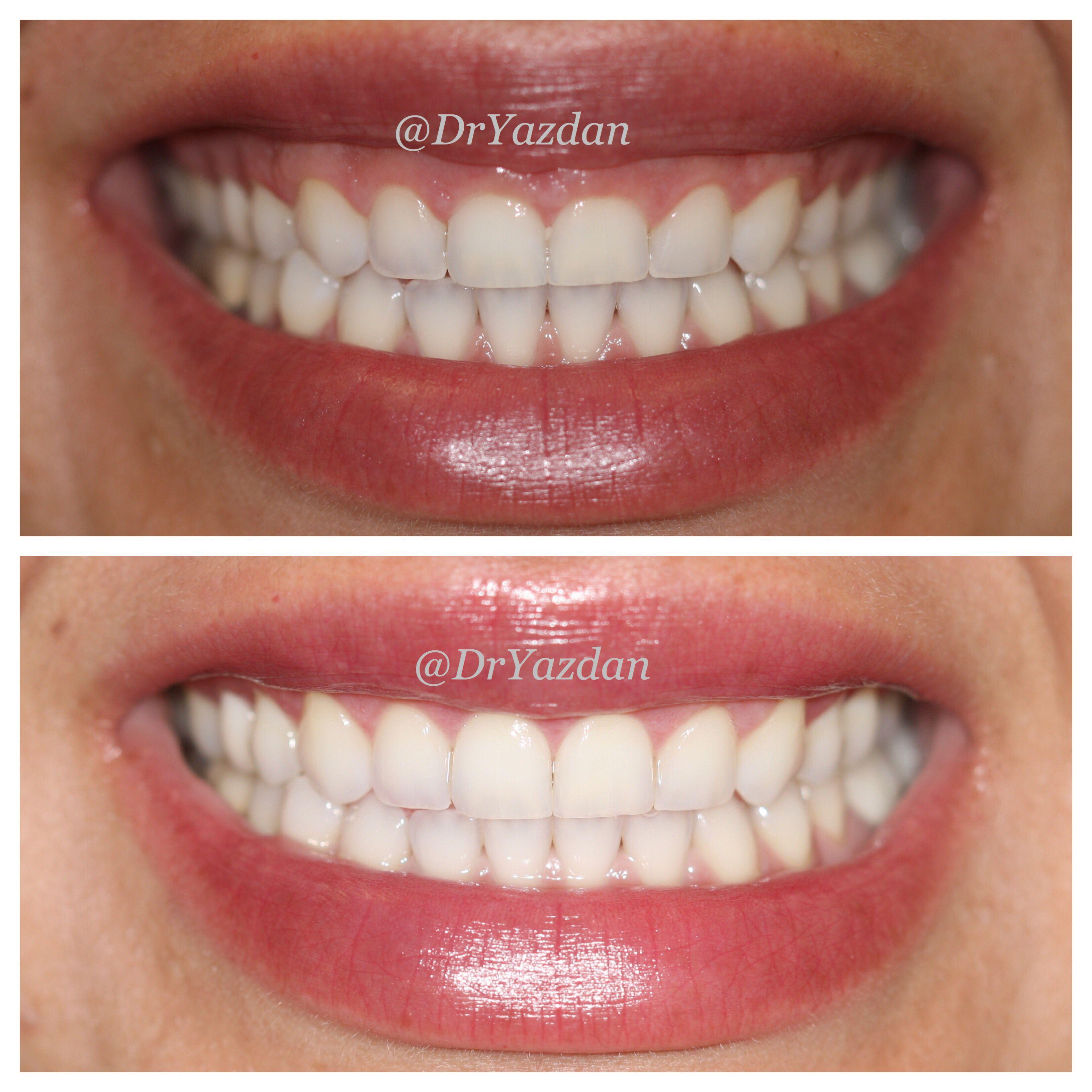 Aesthetic dentistry: modern methods for correcting dental defects