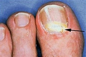 White Toenail Fungus — Nails Turning White Due to Fungal Infection ...
