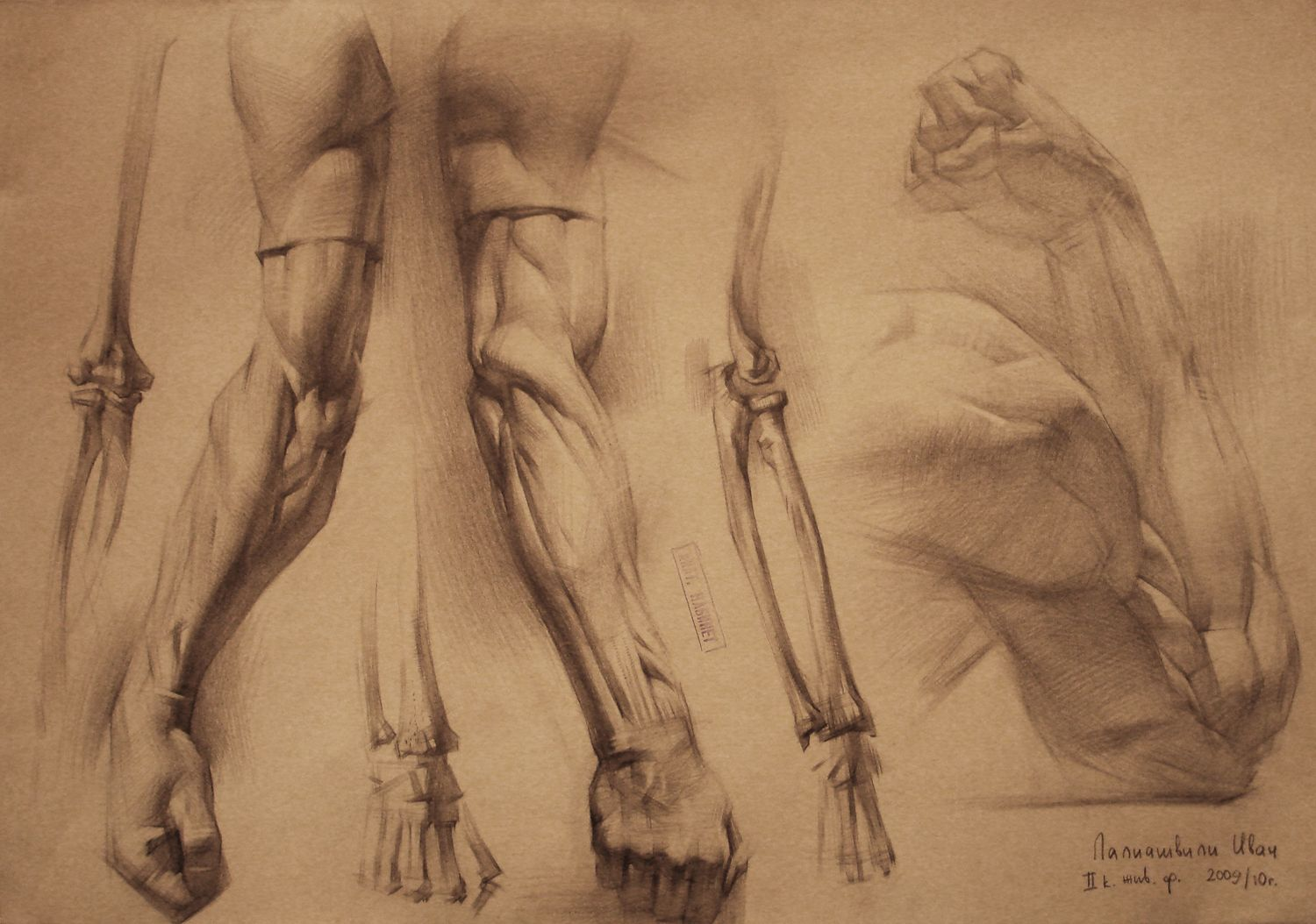 Temporary and Restoration Worker at Work: human anatomy by Iv ...