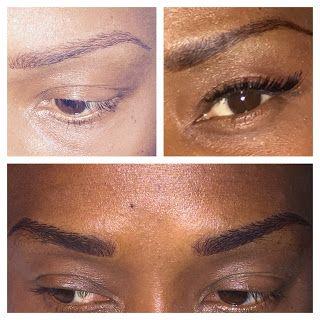 An Immediate Solution For Eyebrow Loss   Eyebrow loss ...