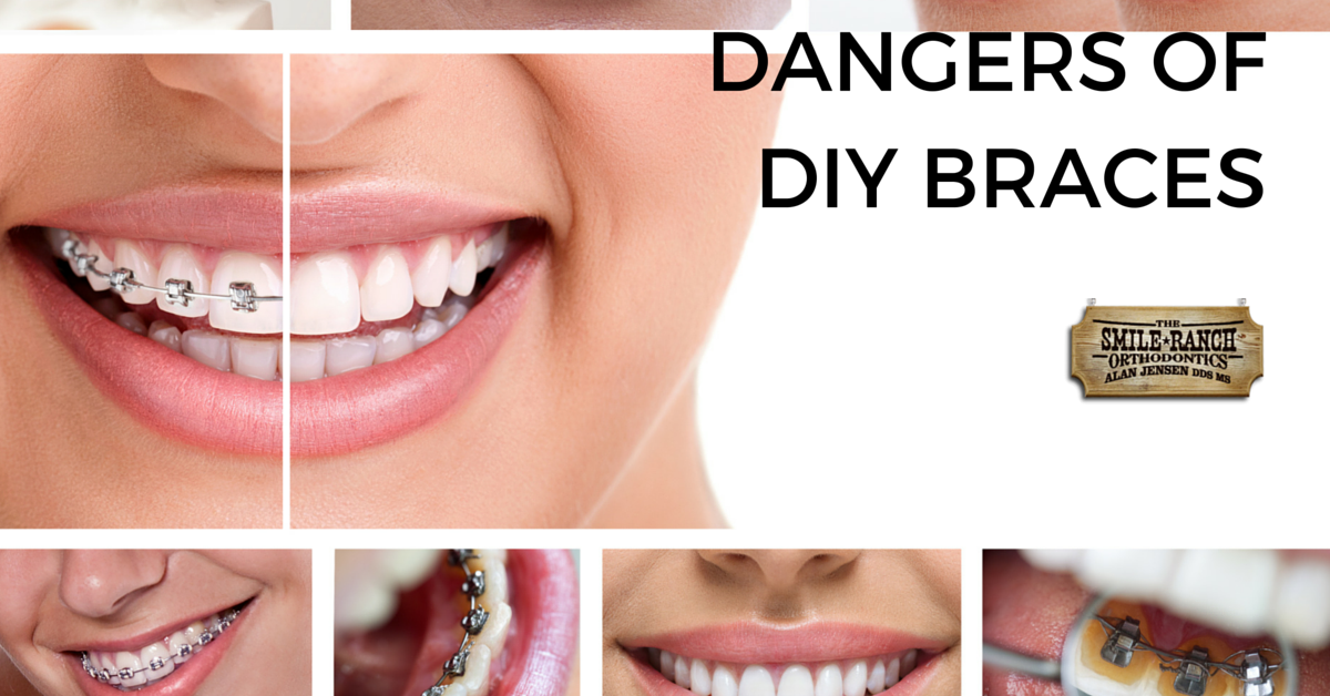 Dont cut corners trying to straighten your teeth with gap bands dont cut corners trying to straighten your teeth with gap bands or mail in orthodontics trust professionals to do the job here are some diy dangers of solutioingenieria Image collections