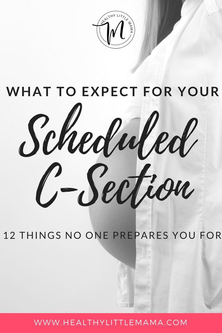 290e8ed11 WHAT TO EXPECT FOR YOUR SCHEDULED C-SECTION
