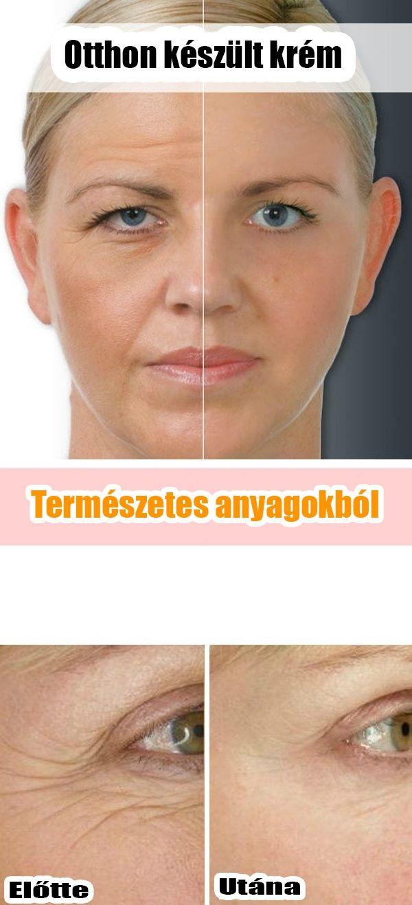 elveszíti az arc zsírját előtte és utána)