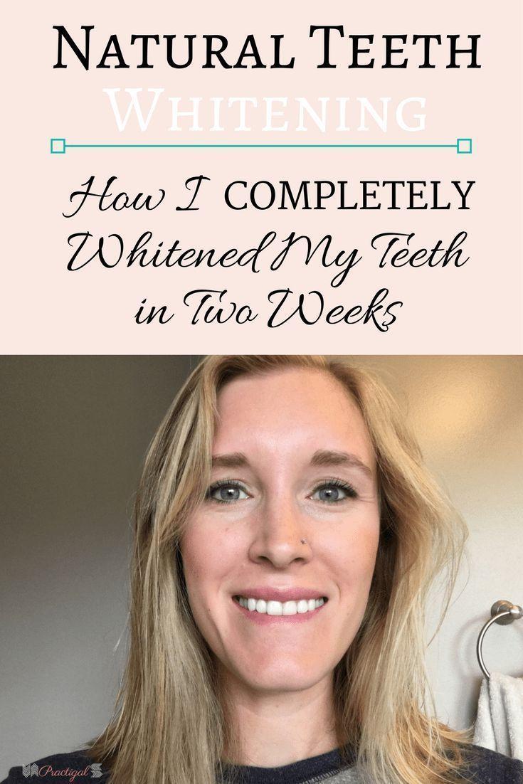 Natural Teeth Whitening | Practigal Blog | Simplify. Organize. Prioritize. #bestteethwhitening