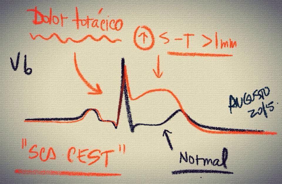 ECG5-dolor torácico
