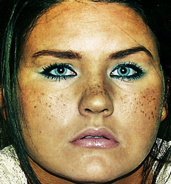 Freckles Them