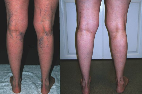 varicose veins treatment apple cider vinegar