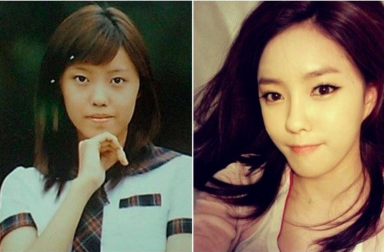 13 Korean Celebrities Who Have Admitted To Plastic Surgery Plastic Surgery Celebrity Plastic Surgery Korean Celebrities