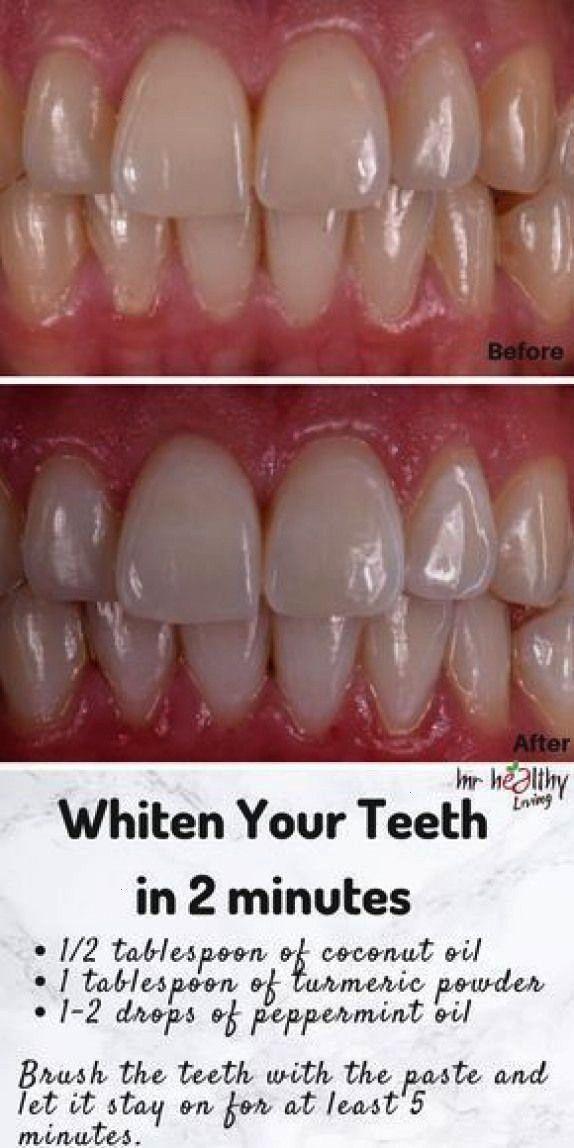 teeth whitening teeth whitening homemade teeth whitening homemade turmeric teeth whitening products teeth whitening diy teeth whitening diy instant teeth whitening diy in...