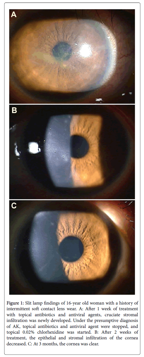A Case of Atypical Acanthamoeba Keratitis with Cruciate Stromal ...