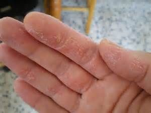 Eczema Hands Pictures Eczema Free Forever Eczema On Hands